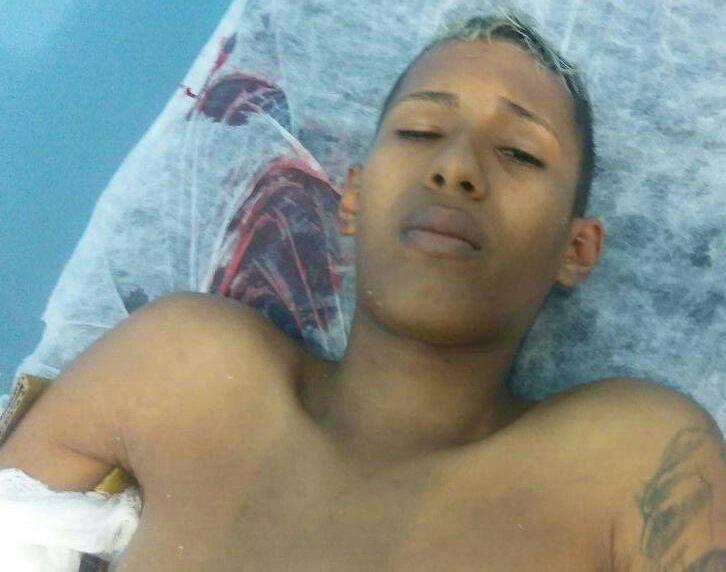 BEM FEITO - Suspeito de assalto dispara contra o próprio corpo durante fuga