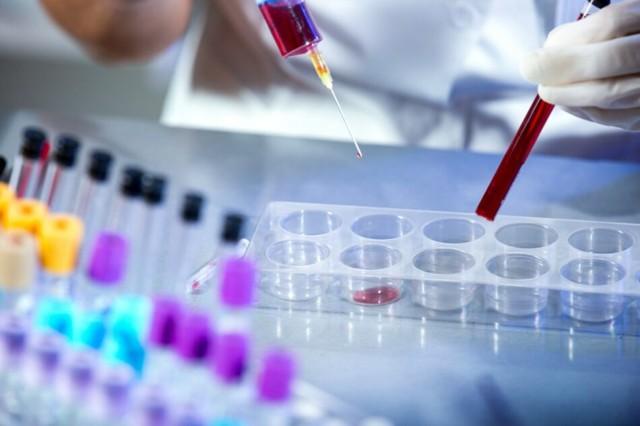 Prefeitura de Porto Velho vai comprar 10 mil kits de exames para Coronavírus