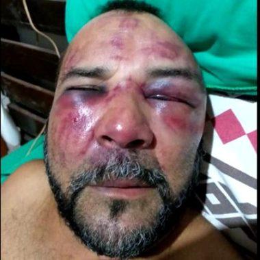 Bombeiro é agredido após pedir carteirinha de exames de sócio de clube