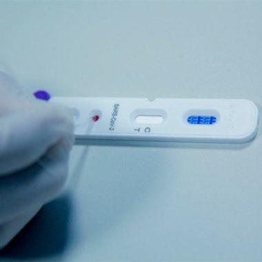 CORONAVÍRUS – Testes em massa na população rondoniense iniciam nesta quarta-feira
