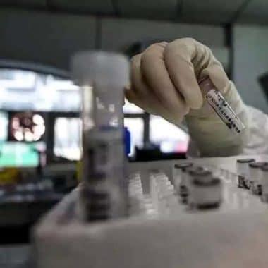 Planos de saúde vão cobrir exames para detecção do novo coronavírus