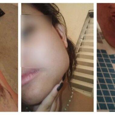 RELACIONAMENTO ABUSIVO – Lésbica espanca namorada por causa de mensagens